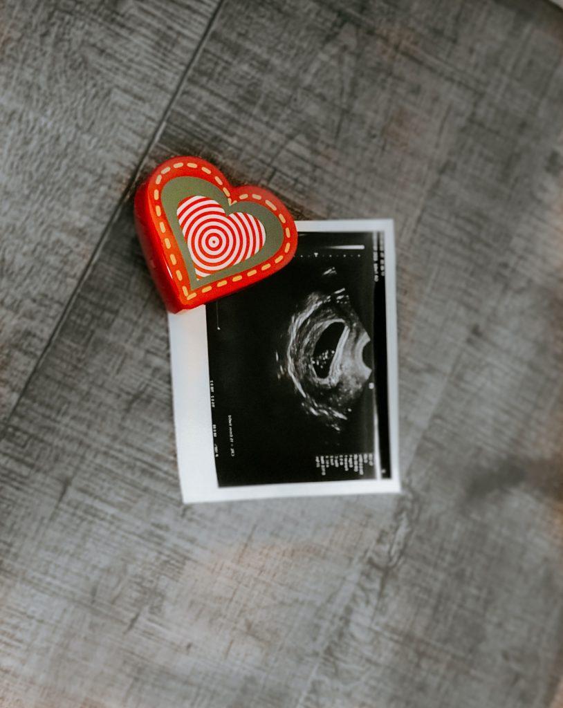 ultrasound image